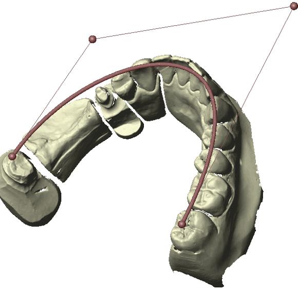 Рисунок 4. Один из этапов работы с отсканированной челюстью для создания моста. Обратите внимание, что слева не хватает зубов, а по краям два зуба уже обточены, чтобы можно было проектировать мост, который на них будет крепиться.